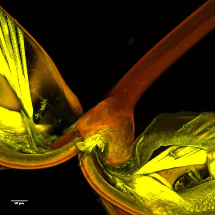 Acaenitinae Micrograph