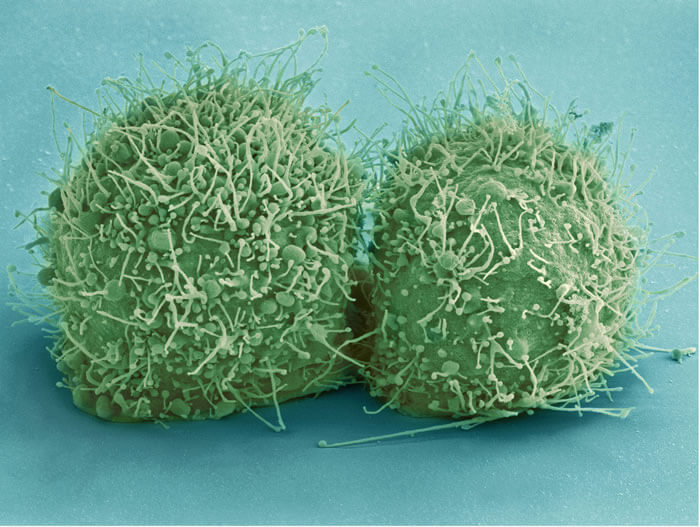 Micrograph Of Just-Divided HeLa Cells