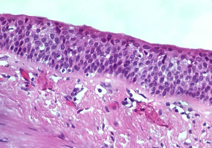 Bronchial Squamous Metaplasia