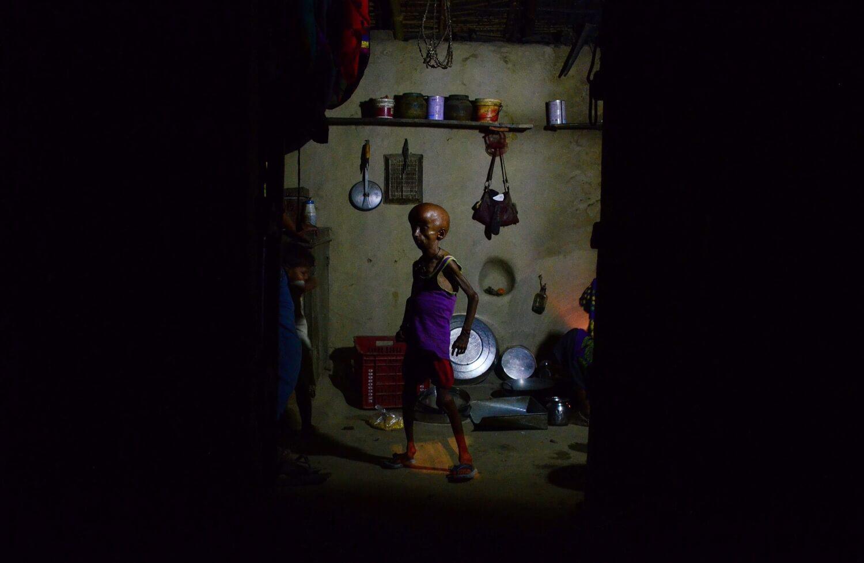 Ritesh Shukla - Hutchinson-Gilford Progeria